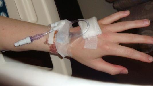 hand catheter