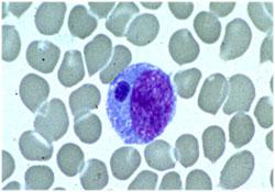 E. chaffeensis smear
